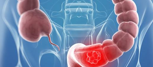 Additivi alimentari, microbiota intestinale alterato e carcinoma al colon