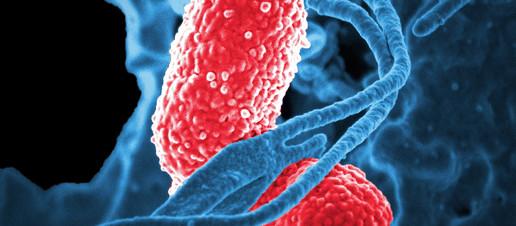 Il ruolo del microbiota intestinale in COVID-19