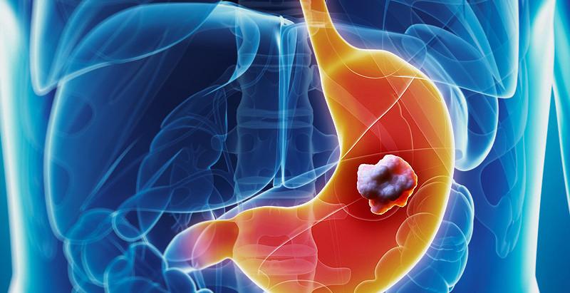 Carne processata, alcol e massa grassa aumentano il rischio di tumore gastrico