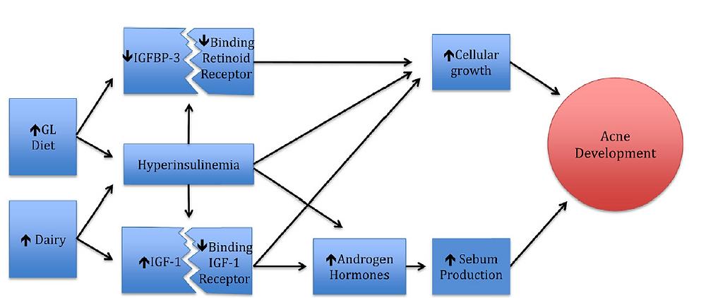 Schema raffigurante i fattori coinvolti nell'interazione tra consumo di latte e consumo di cibi zuccherati e l'insorgenza di acne (Burris J, 2013)