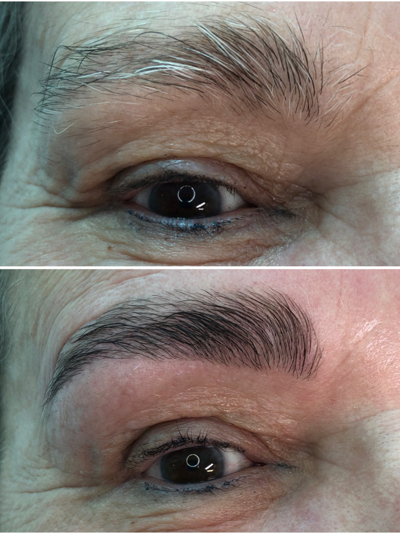 Brow Lifting