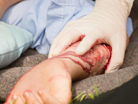 How to Treat Lacerations in the Field