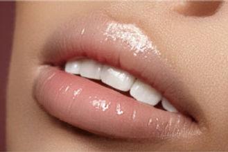Ästhetik und kosmetische Zahnbehandlungen