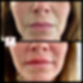 Nasolabial Line Dermal Filler