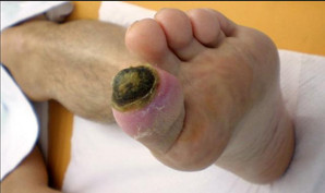 ischemic ulcer.jpg