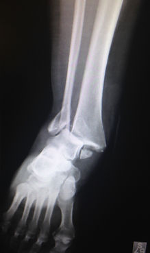 Ankle Fracture - Orange County Foot and Ankle Surgeon