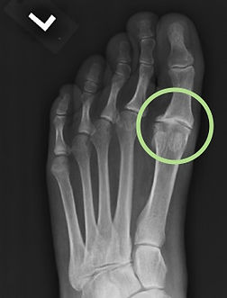 Great Toe Arthritis (Hallux Rigidus) - Orange County Foot and Ankle Surgeon
