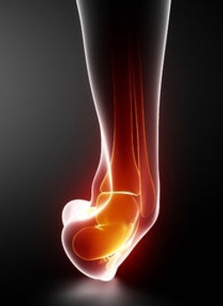 Ankle Sprain - Orange County Foot and Ankle Surgeon