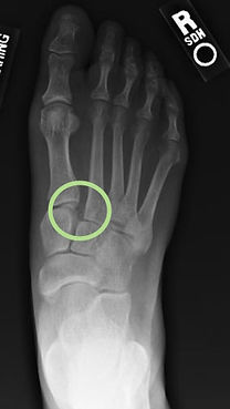 Foot Sprain - - Orange County Foot and Ankle Surgeon