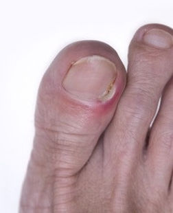 Ingrown Toenail, Orange County, Foot and Ankle Surgeon