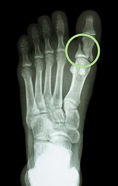 Toe Fracture - Orange County Foot and Ankle Surgeon