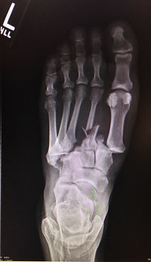 Midfoot Fracture (LisFranc Fracture) - Orange County Foot and Ankle Surgeon