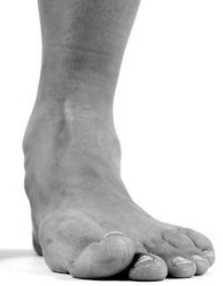 Flat Foot - Orange County Foot and Ankle Surgeon