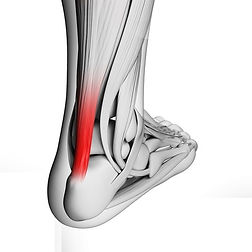 Achilles Tendon Injury - Orange County Foot and Ankle Surgeon