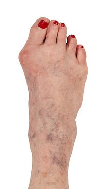 Bunion Deformity - Orange County Foot and Ankle Surgeon