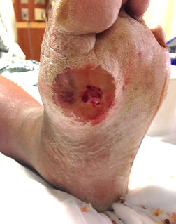 Diabetic Limb Salvage - Orange County Foot and Ankle Surgeon