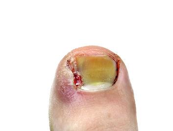 Ingrown toenail disease blood on a white