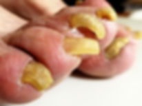 Onychomycosis fungal infection of the na