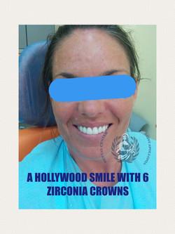 Zirconia crowns
