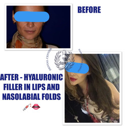 Hialuronic filler in lips and nasolabial folds