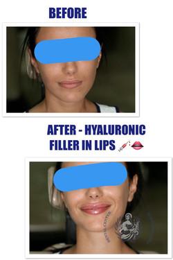 Hialuronic filler in lips
