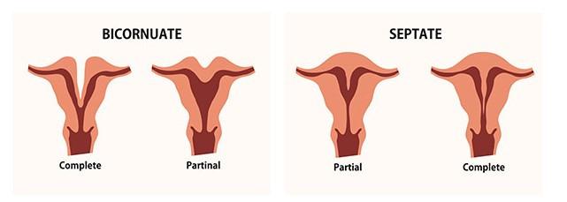 Heart Shaped Uterus and Your Fertility // Utero en forma de corazon y tu fertilidad