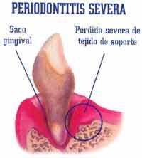 periodontitis-severa.jpg
