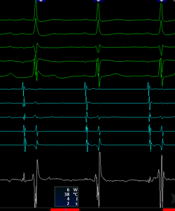 Signals during an ablation