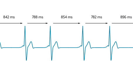 Measuring Recovery with Heart Rate Variability (HRV)