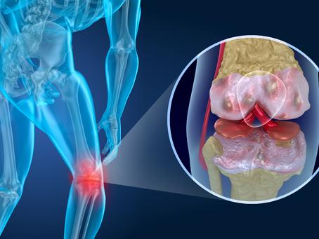 6 Common Myths About Arthritis