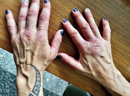 【Bellator】クリス・サイボーグの「Bellator259」激闘後の手~トレーニングでできたまめのある手