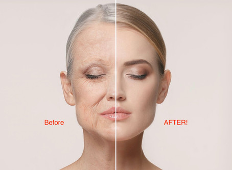 MIRACLE CURE-Non-invasive, anti-wrinkle, anti-ageing technology.