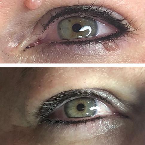 light-medium eyeliner (heals softer)