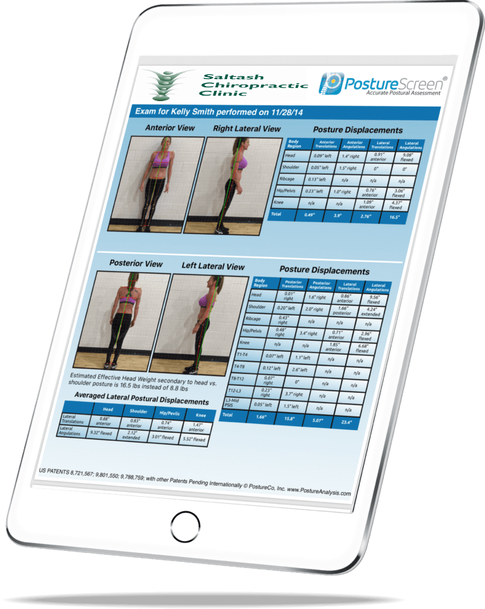 Poture-Screen-Technology-Saltash-Chiropractic-Clinic