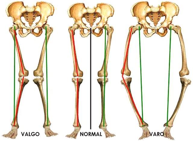 Resultado de imagem para joelho varo