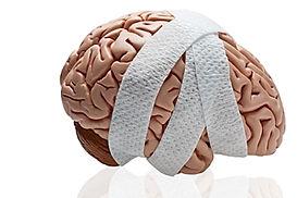 concussion bandage.jpg
