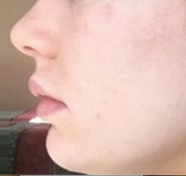 Dp4 acne after.png