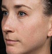 Dermapen 4 freckles before.png