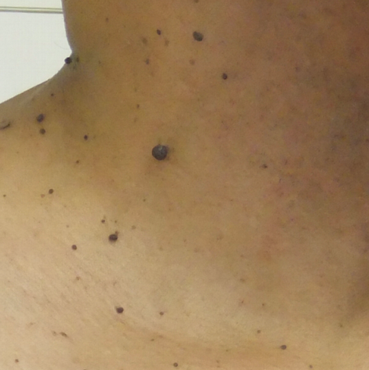 skin tag removal before.png