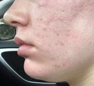 Dp4 acne before.png