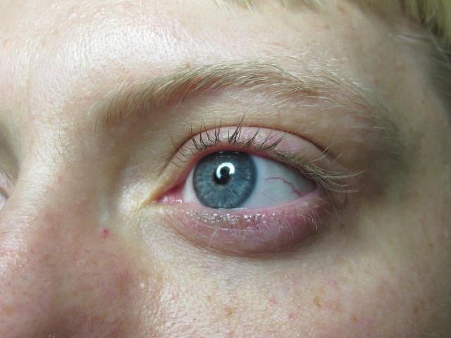 eye makeover before.jpg