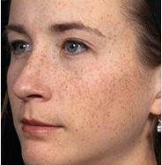 Dermapen 4 freckles after.png