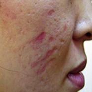 DP4 scar before.png