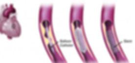 angioplasty stent_edited_edited.jpg