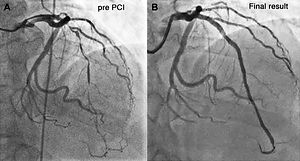 angioplasty before and after.jpg