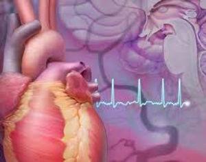 atrial fibrillation.jpg