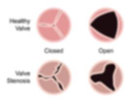 healthy-valve-stenosis.jpg