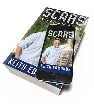5x8-Paperback-book-iphone-Mockup-SCARS.p