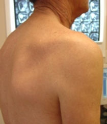 Shoulder muscle atrophy