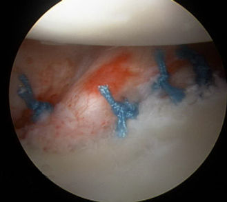 Arthroscopic Bankart tear repair